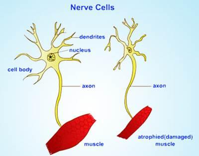 เซลล์ประสาทของผู้เป็นโรค ALS