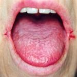 โรคปากนกกระจอก