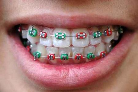 ขั้นตอนการจัดฟัน