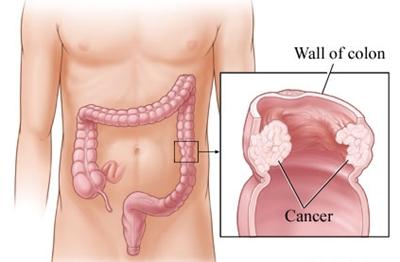 มะเร็งลำไส้