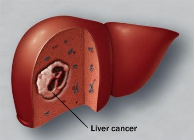 มะเร็งตับ