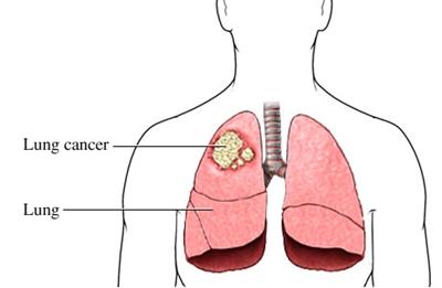 มะเร็งปอด