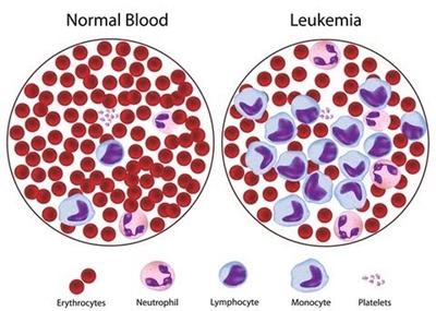 มะเร็งเม็ดเลือดขาว