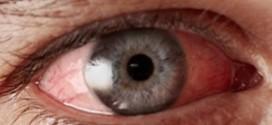 โรคตาแดง สาเหตุ อาการ วิธีป้องกัน และวิธีรักษาโรคตาแดง