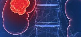 มะเร็งไต สาเหตุ อาการ วิธีรักษา และการดูแลผู้ป่วยโรคมะเร็งไต