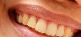 วิธีกำจัดฟันเหลือง ให้ขาวสะอาดสดใส