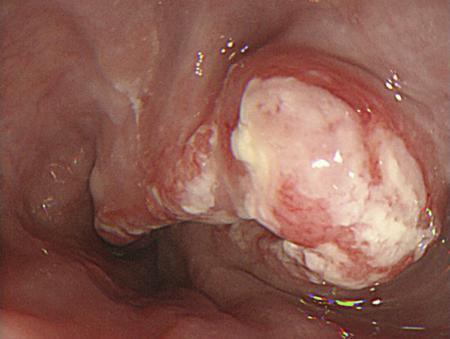 มะเร็งหลอดอาหาร